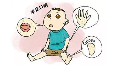 幼儿口峡炎的早期症状